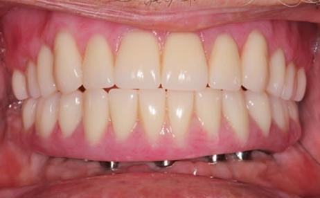 Имплантация all-on-4 в Екатеринбурге, имплантация зубов все на 4 ...