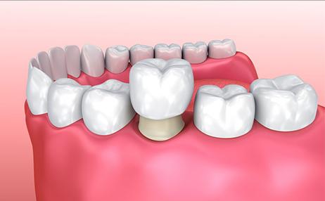 Какие коронки на зубы лучше ставить: основные варианты